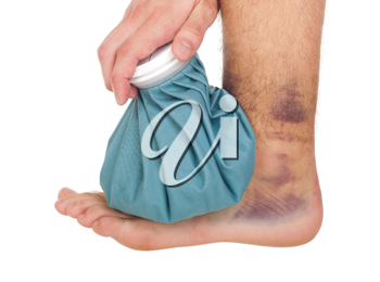 Royalty Free Photo of a Man Icing a Sprained Ankle