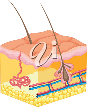 Hair coming out of human skin illustration