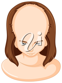 Hair lose in woman illustration