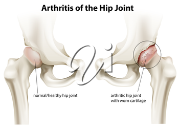 Illustration showing the arthritis of the hip joint on a white background