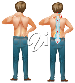 Male human with back pain illustration