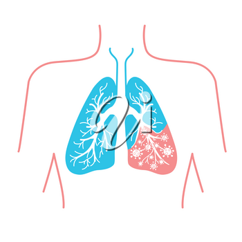icon of lung disease, pneumonia, asthma, cancer in the form of lung anatomy and viruses causing disease. Icon in linear style