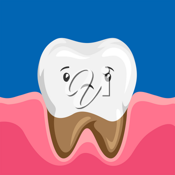 Illustration of sick tooth with caries. Children dentistry sad character. Kawaii facial expression.