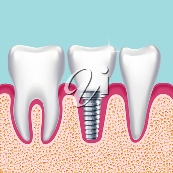 Human teeth and dental implant in jaw orthodontist medical vector illustration. Health technology and implantation prosthesis